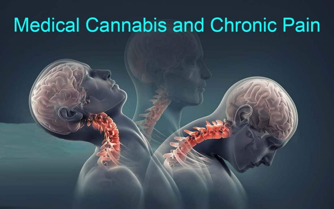 Using Medical Cannabis for Opioids Sparing and Opioids Tapering in Chronic Pain